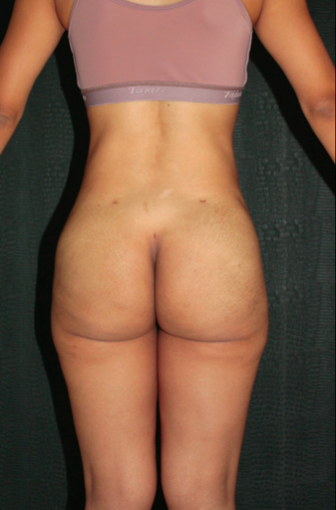 18-24 year old woman treated with buttocks and lower back endoscopic removal of Silicone Injections (Biopolimeros) after 1820564