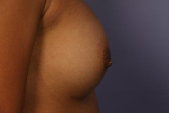Inverted Nipple Repair after 692986