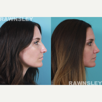 Rhinoplasty Patient after 3004658