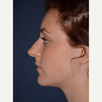 17 or under year old woman treated with Rhinoplasty before 3466898