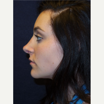 17 or under year old woman treated with Rhinoplasty after 3466898