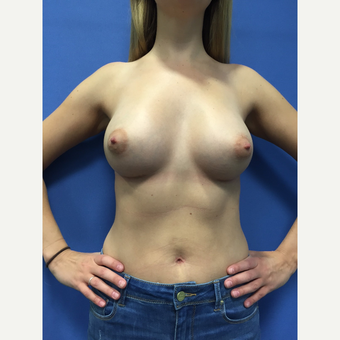 18-24 year old woman treated with Breast Augmentation after 3415486