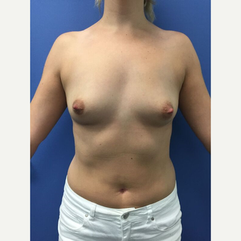 18-24 year old woman treated with Breast Augmentation before 3415486
