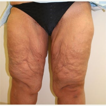 35-44 year old woman treated with Thigh Lift before 2032483