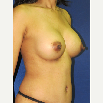 25-34 year old woman treated with Breast Augmentation after 3136116