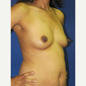 25-34 year old woman treated with Breast Augmentation before 3136116