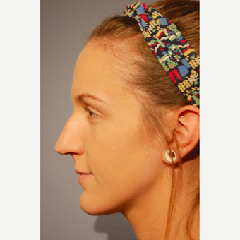 18-24 year old woman treated with Rhinoplasty before 3417499