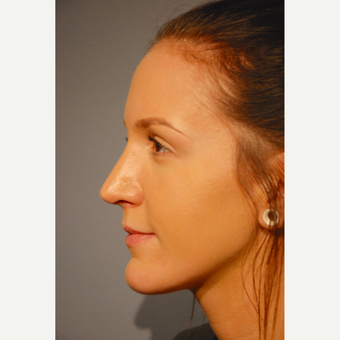 18-24 year old woman treated with Rhinoplasty after 3417499