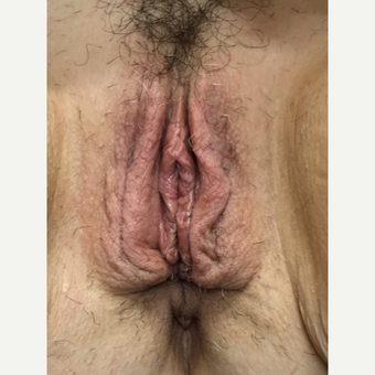 25-34 year old woman treated with Vaginal Rejuvenation before 3628943