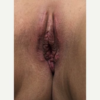 25-34 year old woman treated with Vaginal Rejuvenation after 3628943