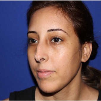 25-34 year old woman treated with Rhinoplasty before 3137029