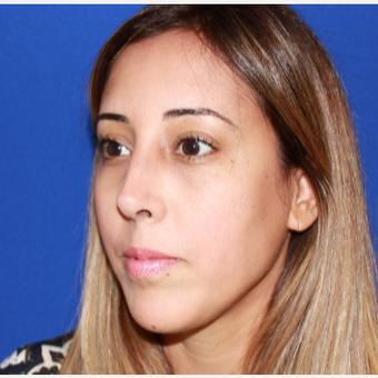 25-34 year old woman treated with Rhinoplasty after 3137029