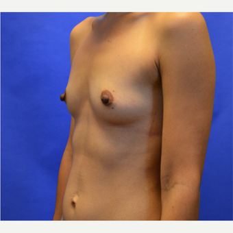 25-34 year old woman treated with Breast Augmentation before 3579884