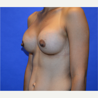 25-34 year old woman treated with Breast Augmentation after 3579884