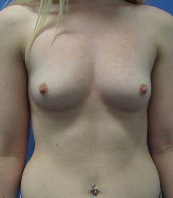 19 Year Old female - Bilateral breast augmentation, round 375cc mentor implants  before 1376087