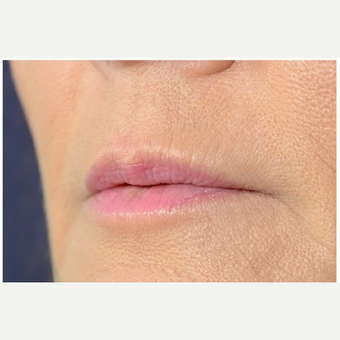 45-54 year old woman treated with Juvederm after 3702333