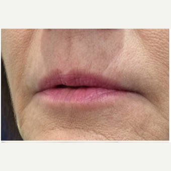 45-54 year old woman treated with Juvederm before 3702333
