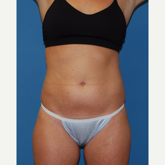25-34 year old woman treated with SculpSure before 3413503
