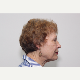 65-74 year old woman treated with Facelift before 3742160