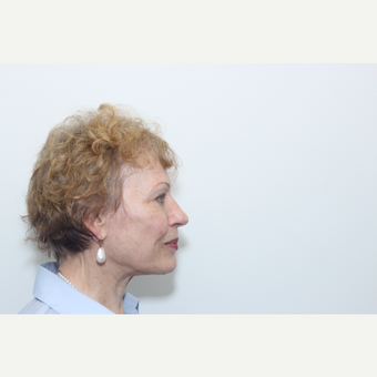 65-74 year old woman treated with Facelift after 3742160