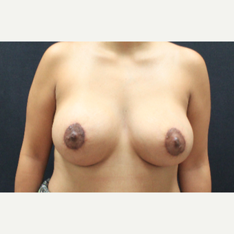 25-34 year old woman treated with Breast Augmentation and Breast Lift after 3225202