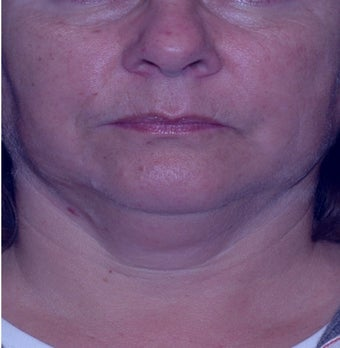 Double chin gone with liposuction alone before 3330613