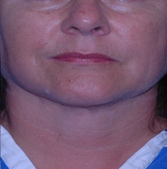 Double chin gone with liposuction alone after 3330613
