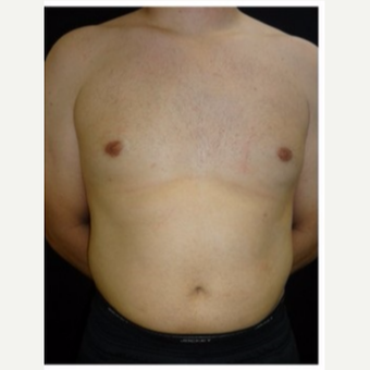 25-34 year old man treated with Male Breast Reduction after 3186009