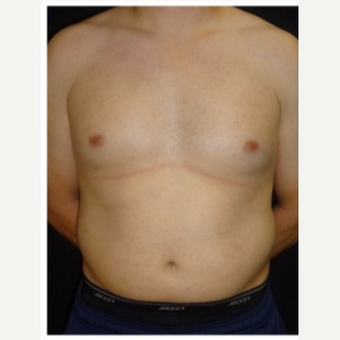 25-34 year old man treated with Male Breast Reduction before 3186009