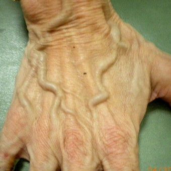 65-74 year old woman treated with Radiesse before 1757769
