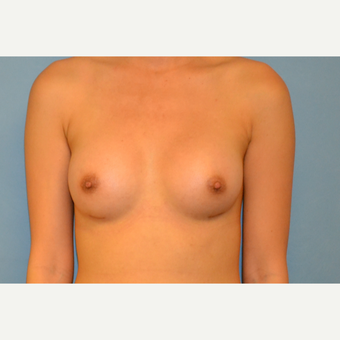 24 year old woman treated with Breast Augmentation with silicone gels after 3094823