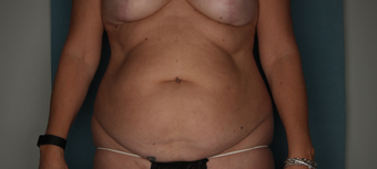 45-54 year old woman treated with Tummy Tuck before 3616122