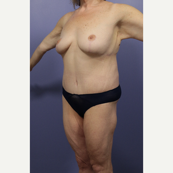 25-34 year old woman treated with Body Lift after 2848339