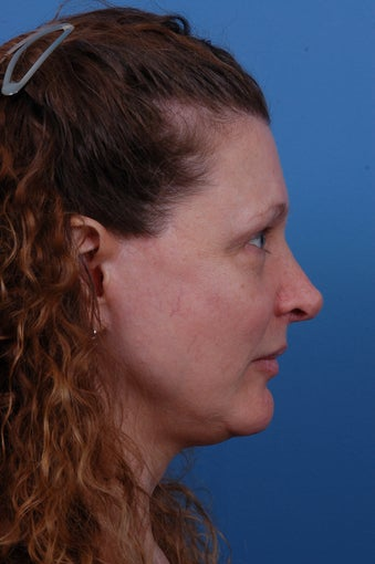 Rhinoplasty Before and After after 1227217