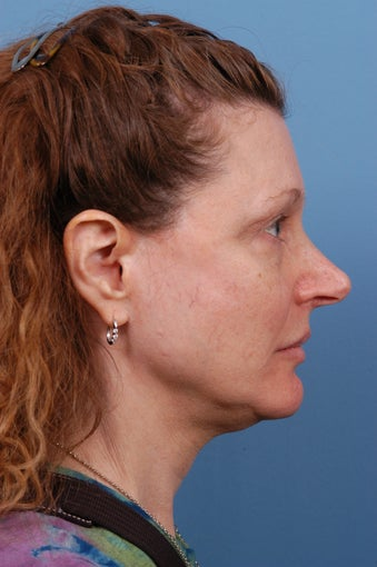 Rhinoplasty Before and After before 1227217