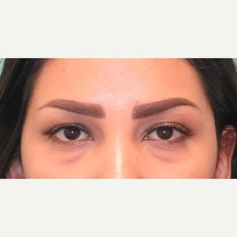 25-34 year old woman treated with lower lid blepharoplasty. before 2438467