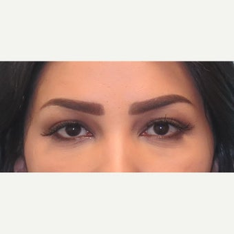 25-34 year old woman treated with lower lid blepharoplasty. after 2438467