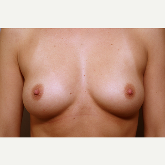 25-34 year old woman treated with Breast Augmentation before 3061592