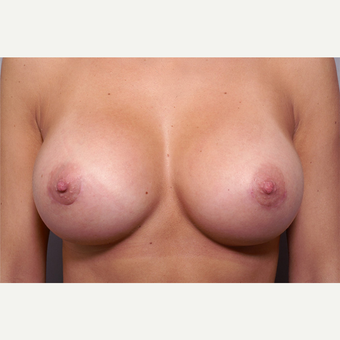 25-34 year old woman treated with Breast Augmentation after 3061592