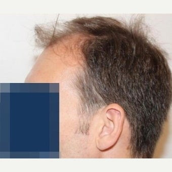 35 year old man treated with FUE Hair Transplant 1975319