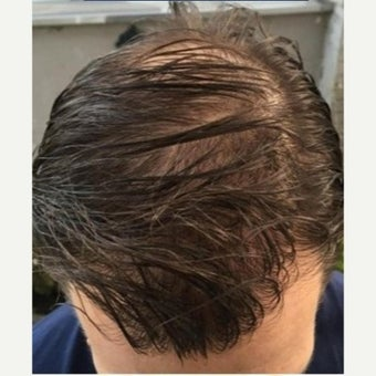 35 year old man treated with FUE Hair Transplant after 1975319