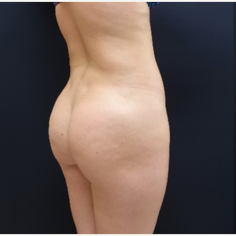 25-34 year old woman treated with 712cc Round Silicone Butt Implants before 3259546