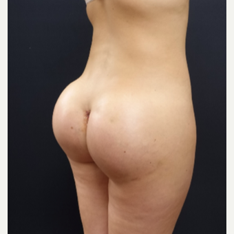 25-34 year old woman treated with 712cc Round Silicone Butt Implants after 3259546