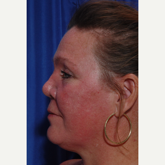 45-54 year old woman treated with Revision Rhinoplasty after 2769523