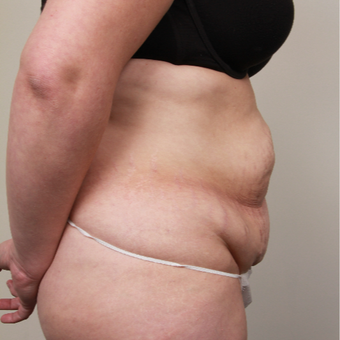 35-44 year old woman treated with Tummy Tuck before 3201030