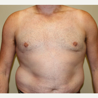 35-44 year old man treated with Male Breast Reduction after 3215421