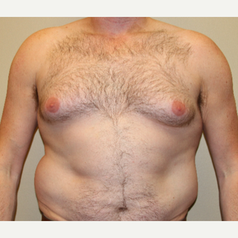 35-44 year old man treated with Male Breast Reduction before 3215421