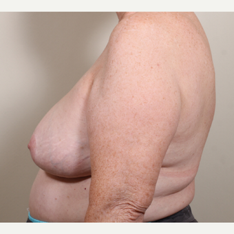55-64 year old woman treated with Breast Reduction after 3398769