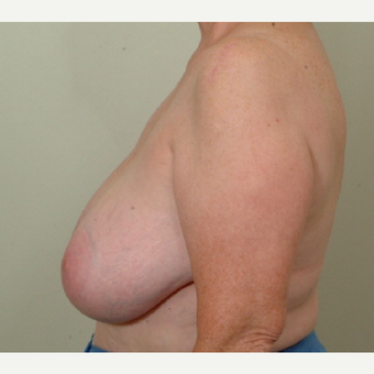 55-64 year old woman treated with Breast Reduction before 3398769