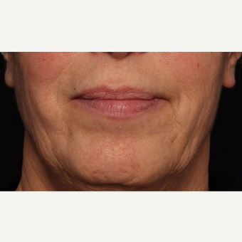 65-74 year old woman treated with Botox before 3520284